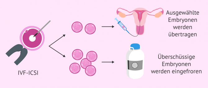 Imagen: Kryotransfer überschüssiger Embryonen