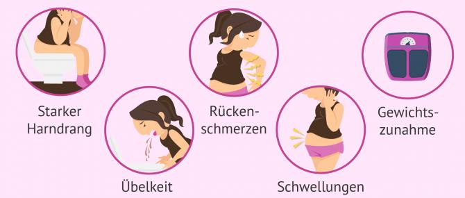 Imagen: Die häufigsten Schwangerschaftssymptome