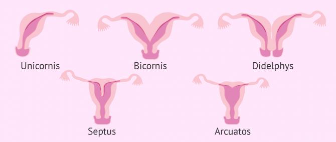 Fehlbildungen der Gebärmutter: Kann ich trotzdem schwanger werden?