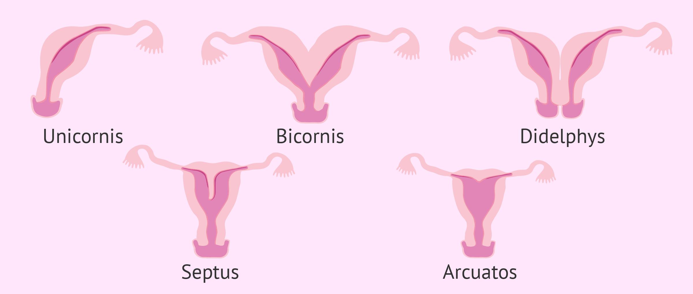Gebärmutterfehlbildungen