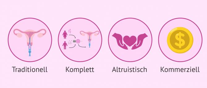 Was sind die verschiedenen Arten der Leihmutterschaft?