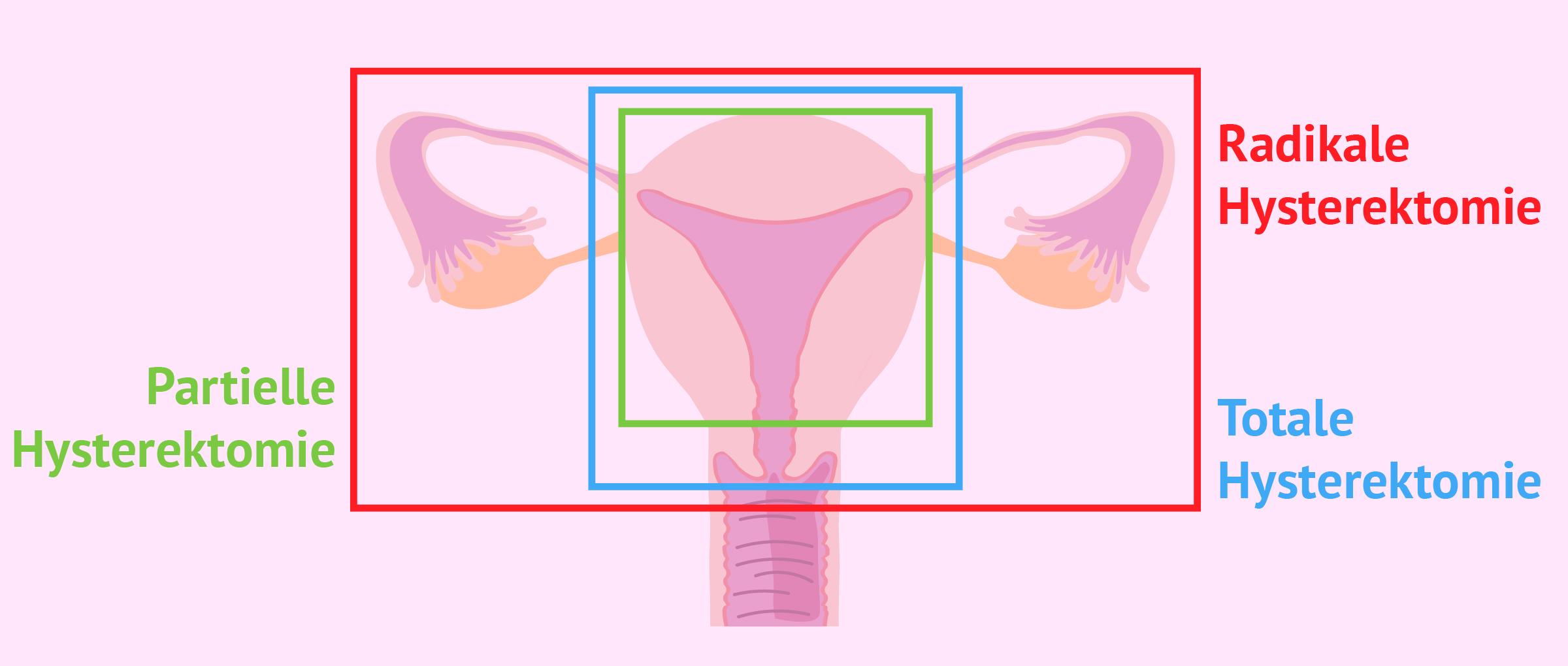 Arten von Hysterektomie