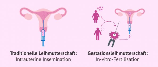 Imagen: Traditionelle und gestationelle Leihmutterschaft