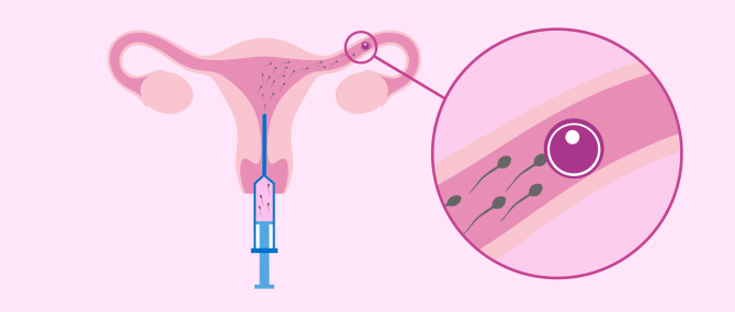 Imagen: Intrauterine Insemination in der Leihmutterschaft