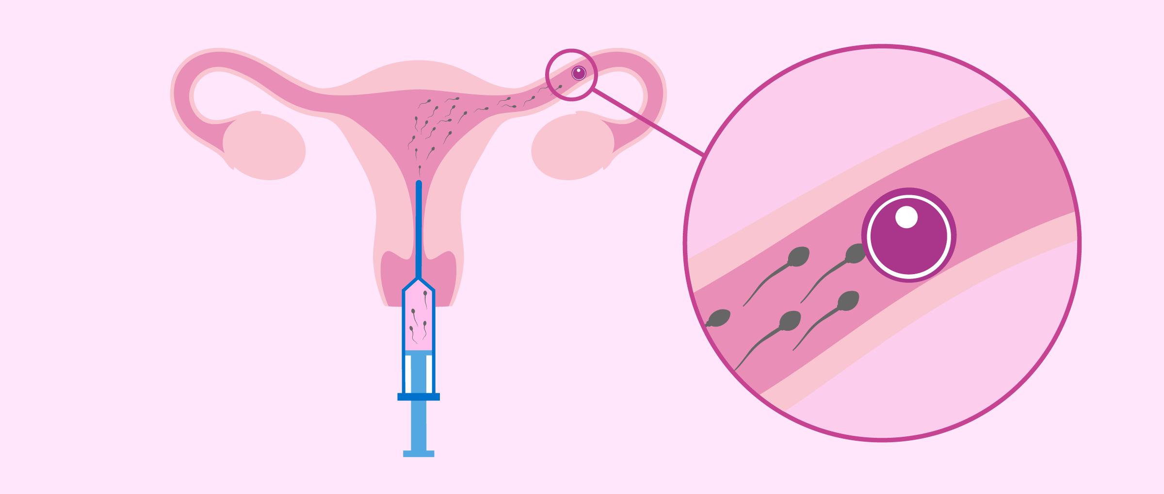 Intrauterine Insemination in der Leihmutterschaft