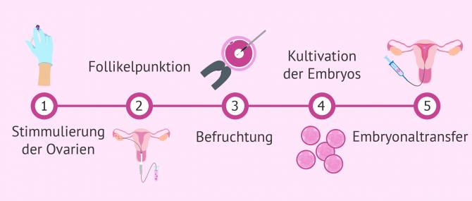 Imagen: Ablauf in der In-vitro-Fertilisation