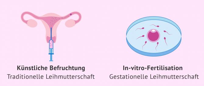 Imagen: künstliche Befruchtung und IVF bei der Leihmutterschaft