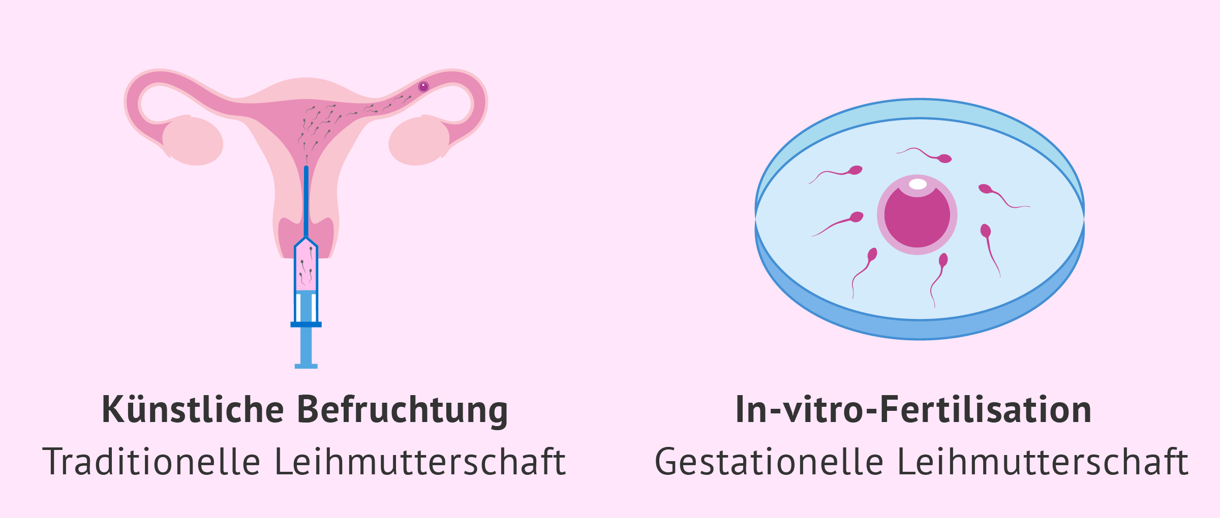 Methoden in der assistierten Reproduktion