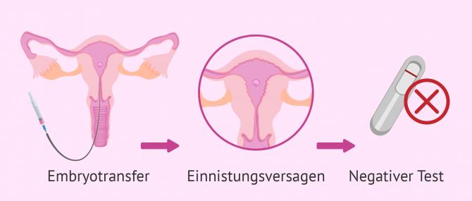 Einnistungsstörung des Embryos: Ursachen und Behandlung