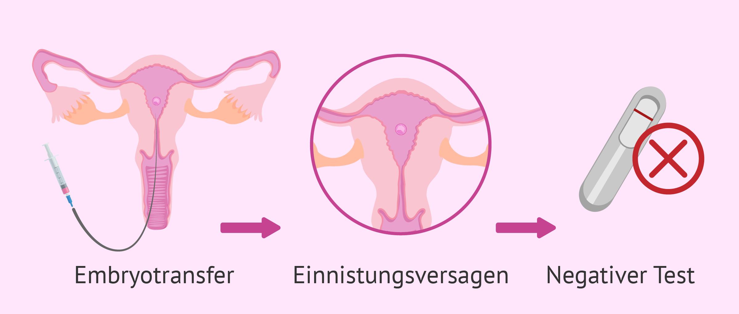 Gescheiterte Einnistung des Embryos: Ursachen, Symptome und Lösungen