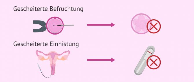 Wiederholtes Scheitern der IVF: Ursachen und Lösungen