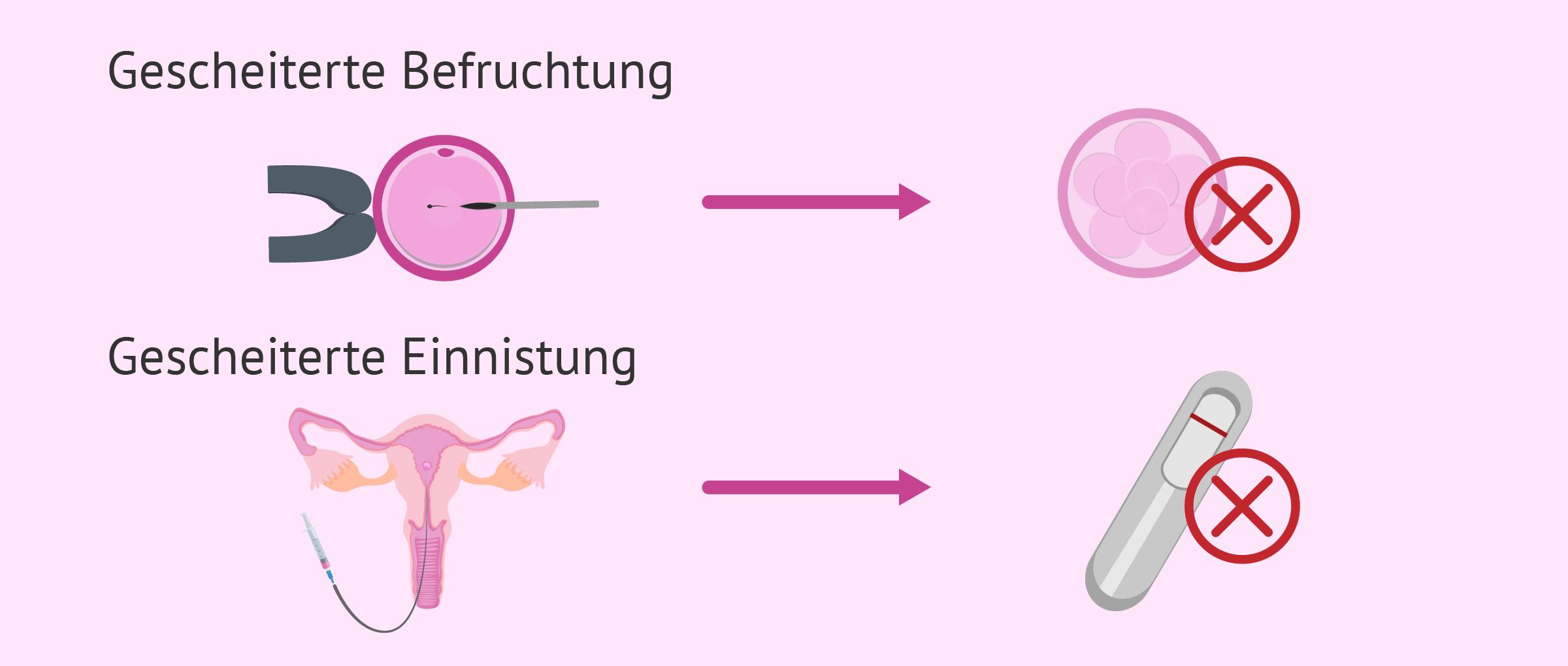 Wiederholtes Scheitern der IVF