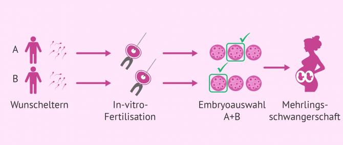 Imagen: IVF in der Leihmutterschaft bei schwulen Paaren