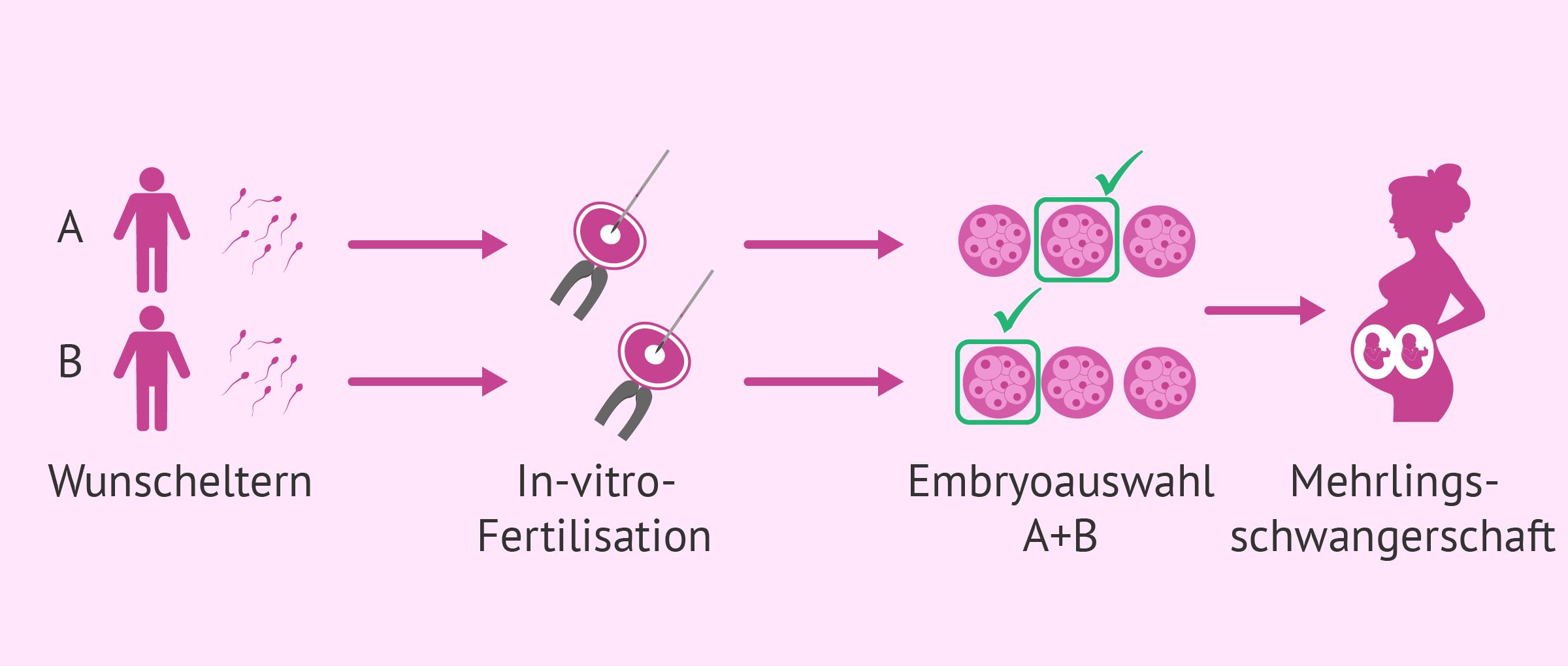 IVF in der Leihmutterschaft bei schwulen Paaren