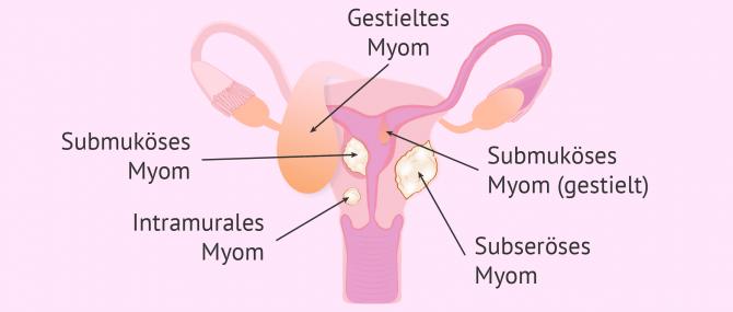Imagen: Arten von Myome in der Gebärmutter