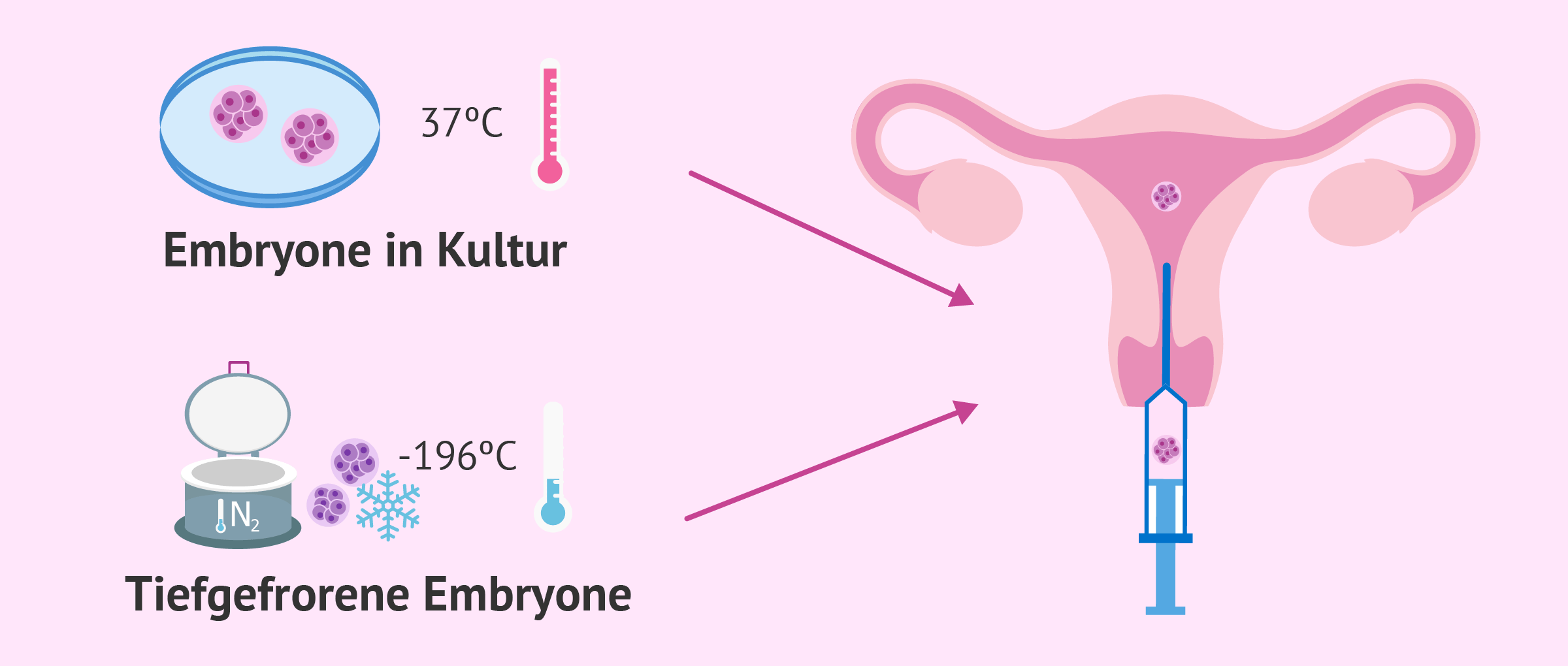 Der Embryotransfer