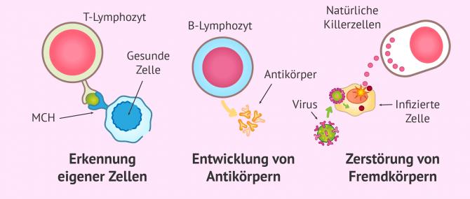 Autoimmunerkrankungen im Zusammenhang mit Fruchtbarkeit