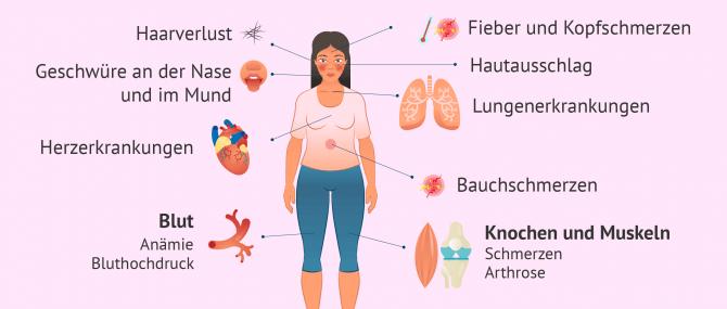 Imagen: Symptome und Erkrankungen die durch Lupus verursacht werden