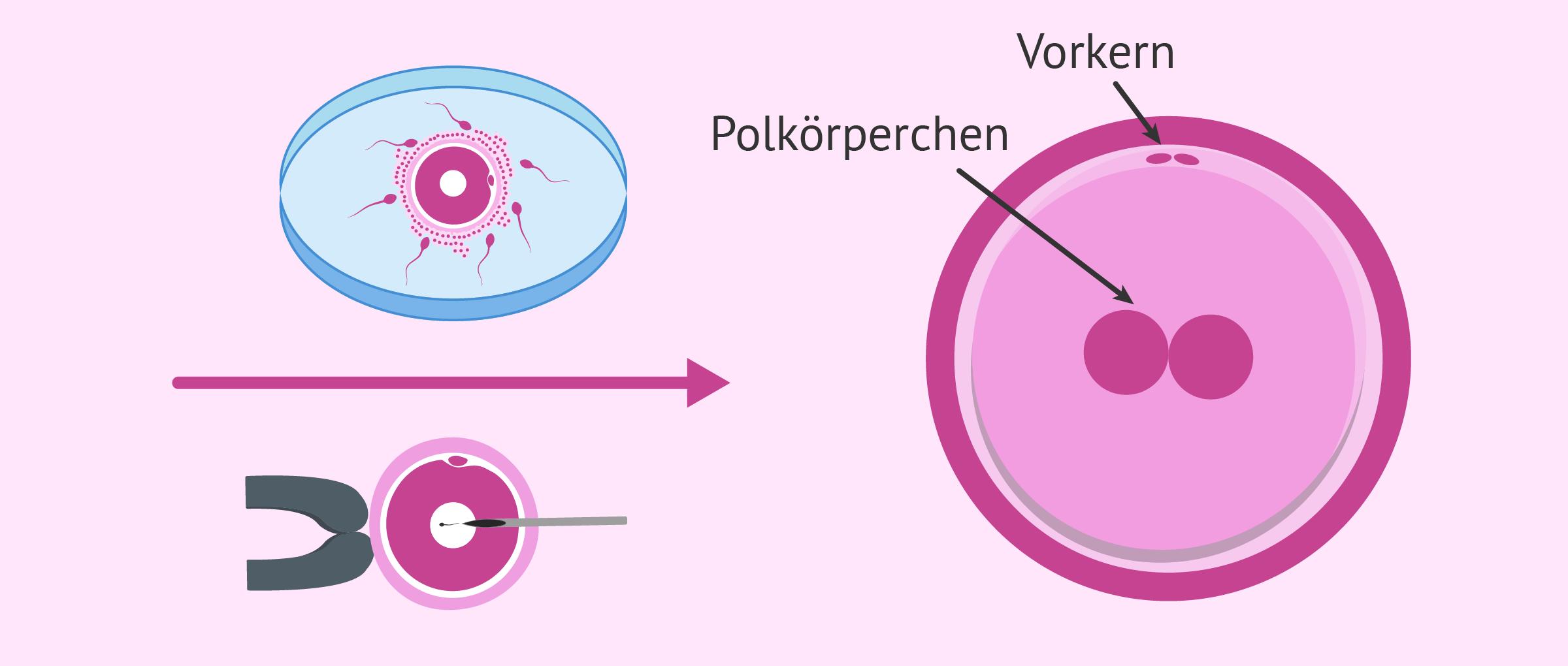 Entwicklung des Embryos am Tag 1: Die Zygote