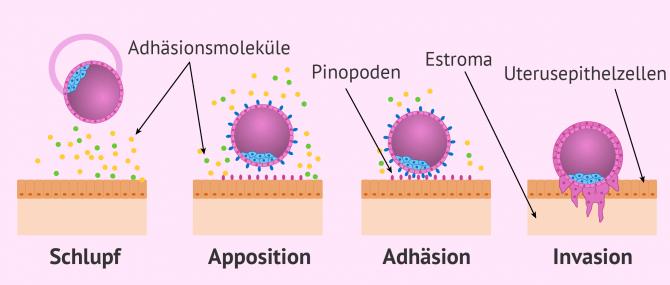 Die Embryoeinnistung in die Gebärmutter: Verlauf und Symptome