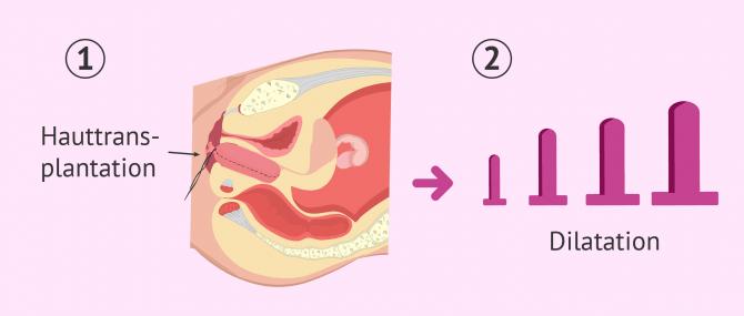 Imagen: Operativer Eingriff um eine Vagina nachzubilden