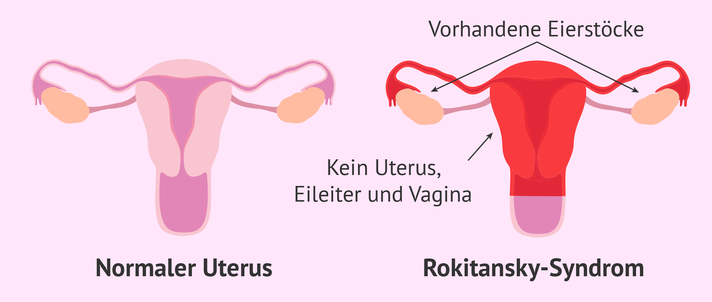Fehlende Vagina, Gebärmutter und Eileiter