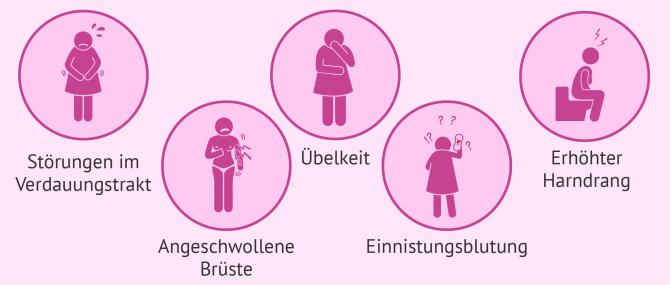 Imagen: Symptome bei Einnistung