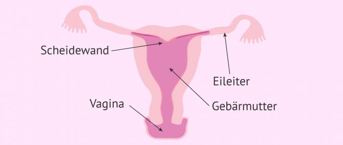Imagen: Uterus arcuatus