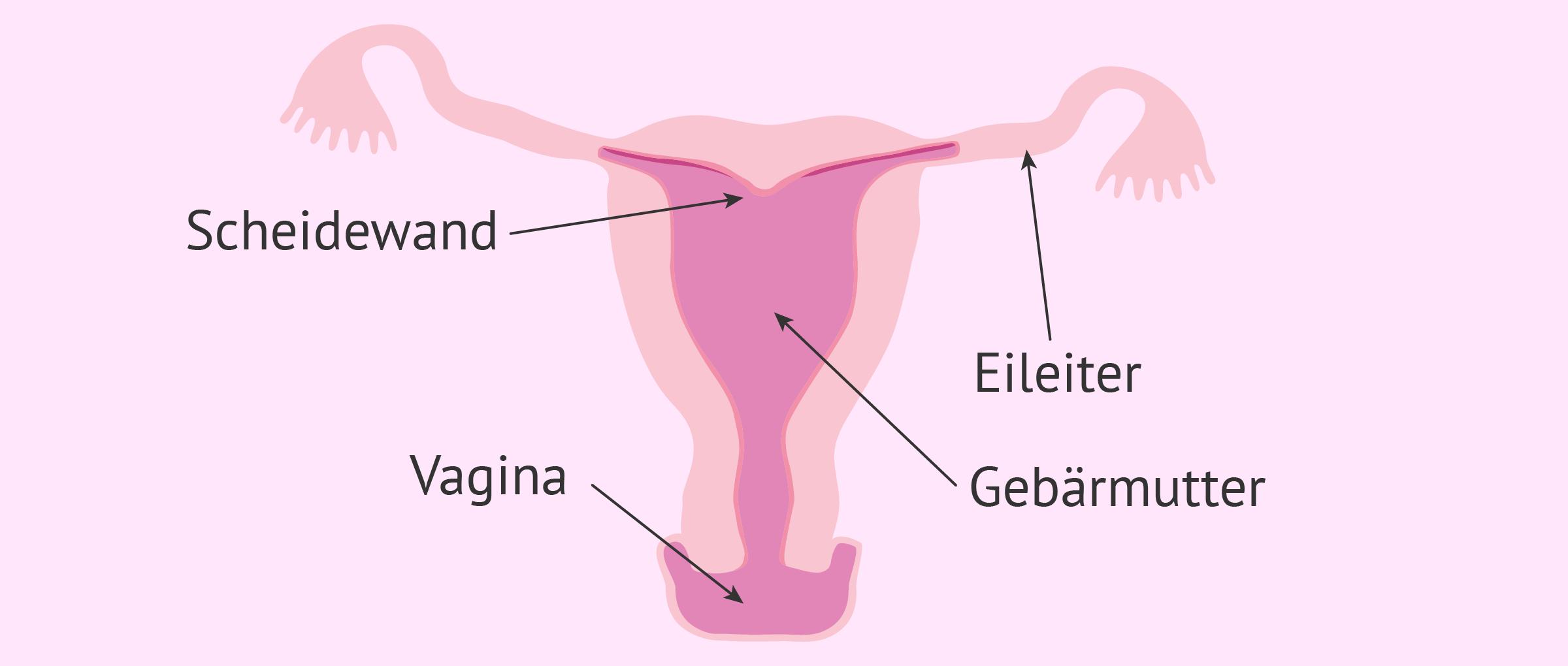 Uterus arcuatus