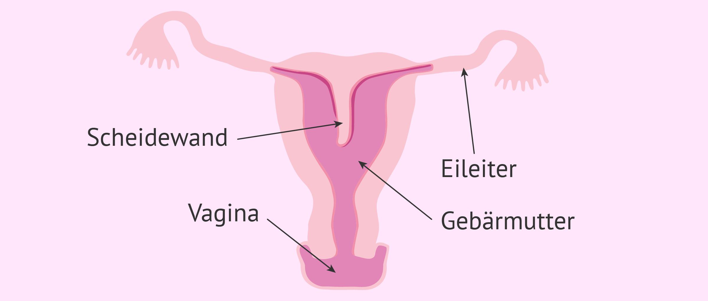 Uterus septus