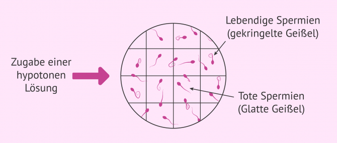 Imagen: Hyposmotischer Test zur Messung der Integrität der Spermienmembran
