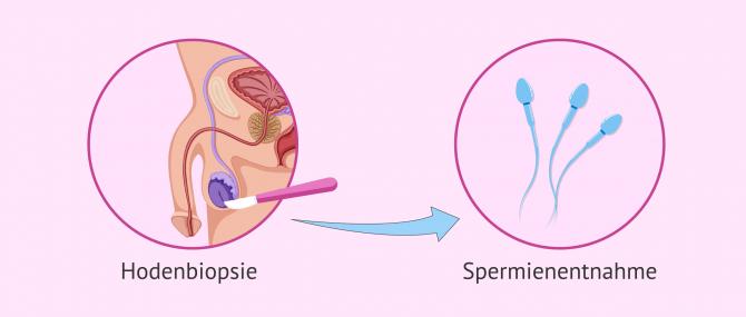 Imagen: Hodenbiopsie zur Überprüfung der Spermienproduktion