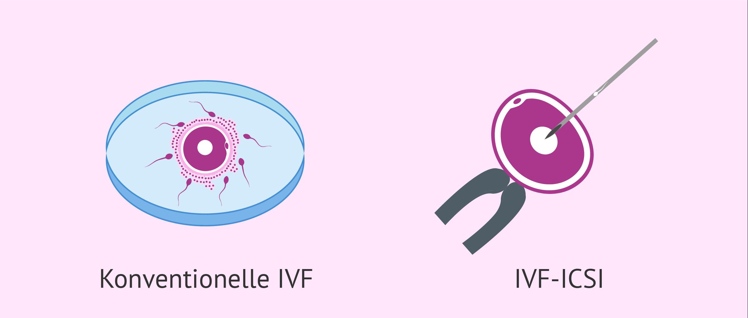 Was ist der Unterschied zwischen der klassischen IVF und der ICSI?