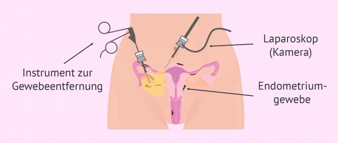 Imagen: Laparoskopie bei Endometriose