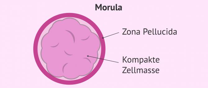 Imagen: Morulastadium