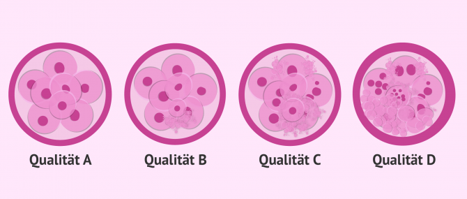 Kriterien zur Klassifikation der Embryoqualität