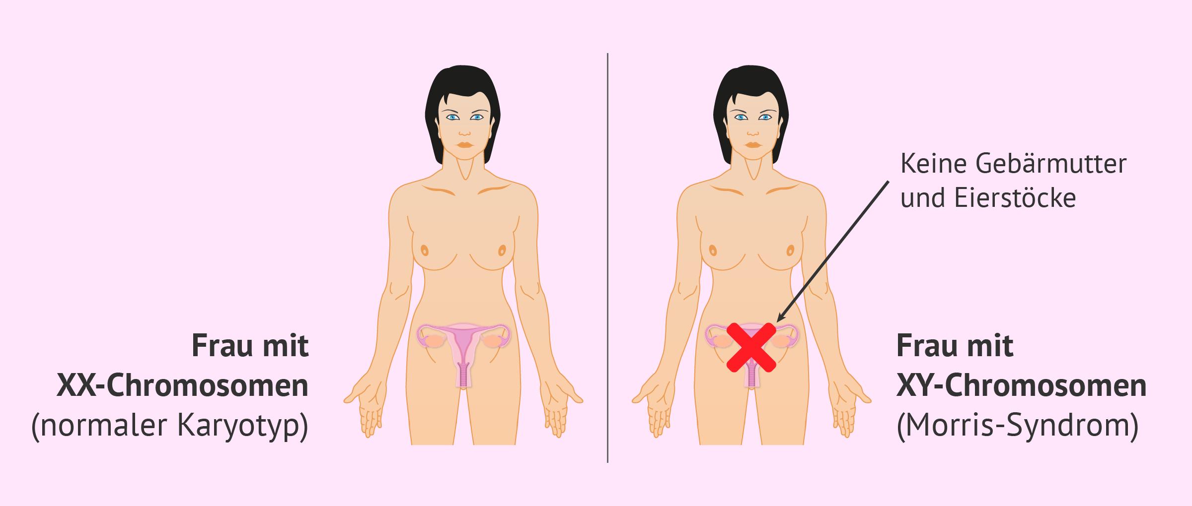 Das Morris-Syndrom: Merkmale, Ursachen und Reproduktionsmöglichkeiten