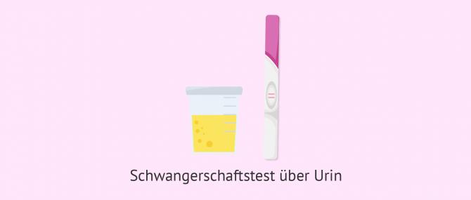 Imagen: Schwangerschaftstest über Urin