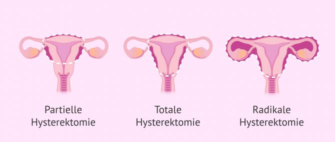 Imagen: Gebärmutterentferung
