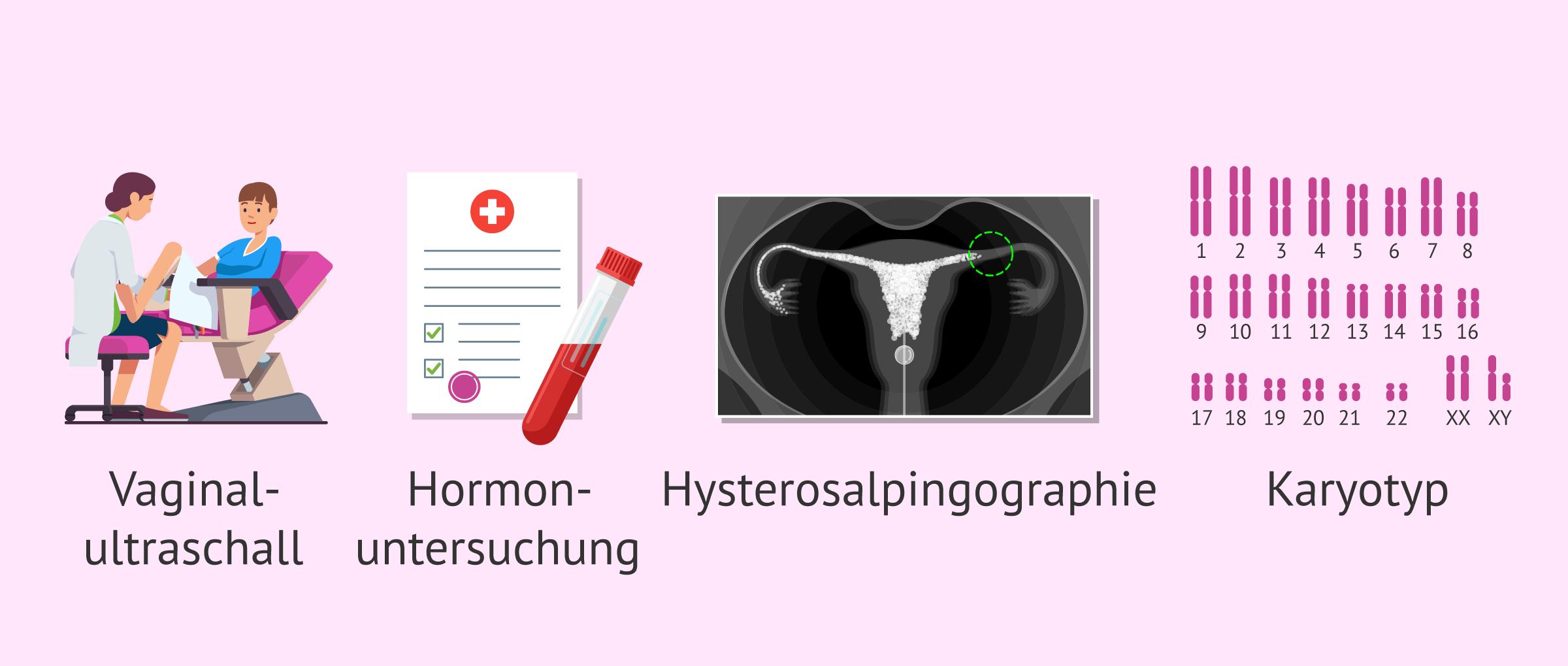 Mit welchen Untersuchungen wird die Fruchtbarkeit der Frau getestet?