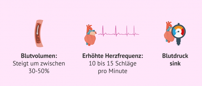 Imagen: Was bei Herz-Kreislauferkrankungen zu beachten ist