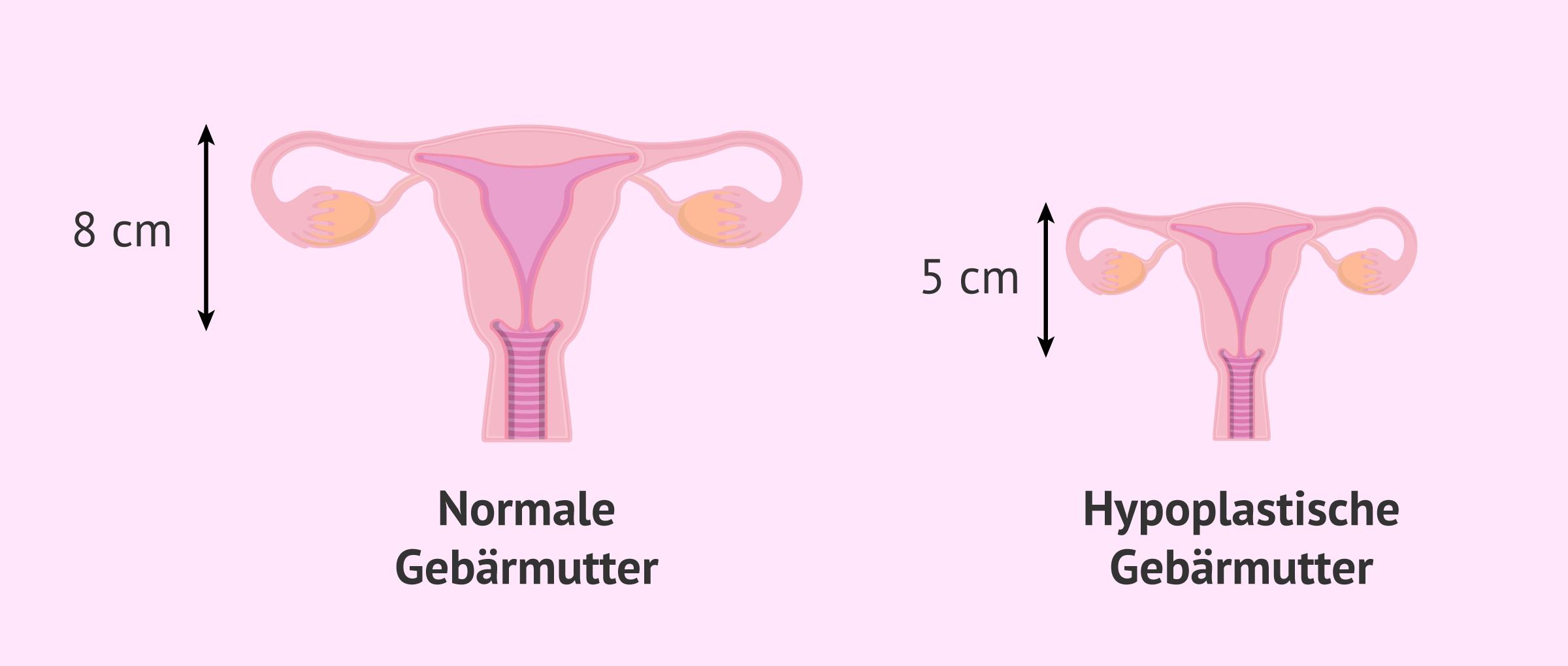Hyperplastische Gebärmutter