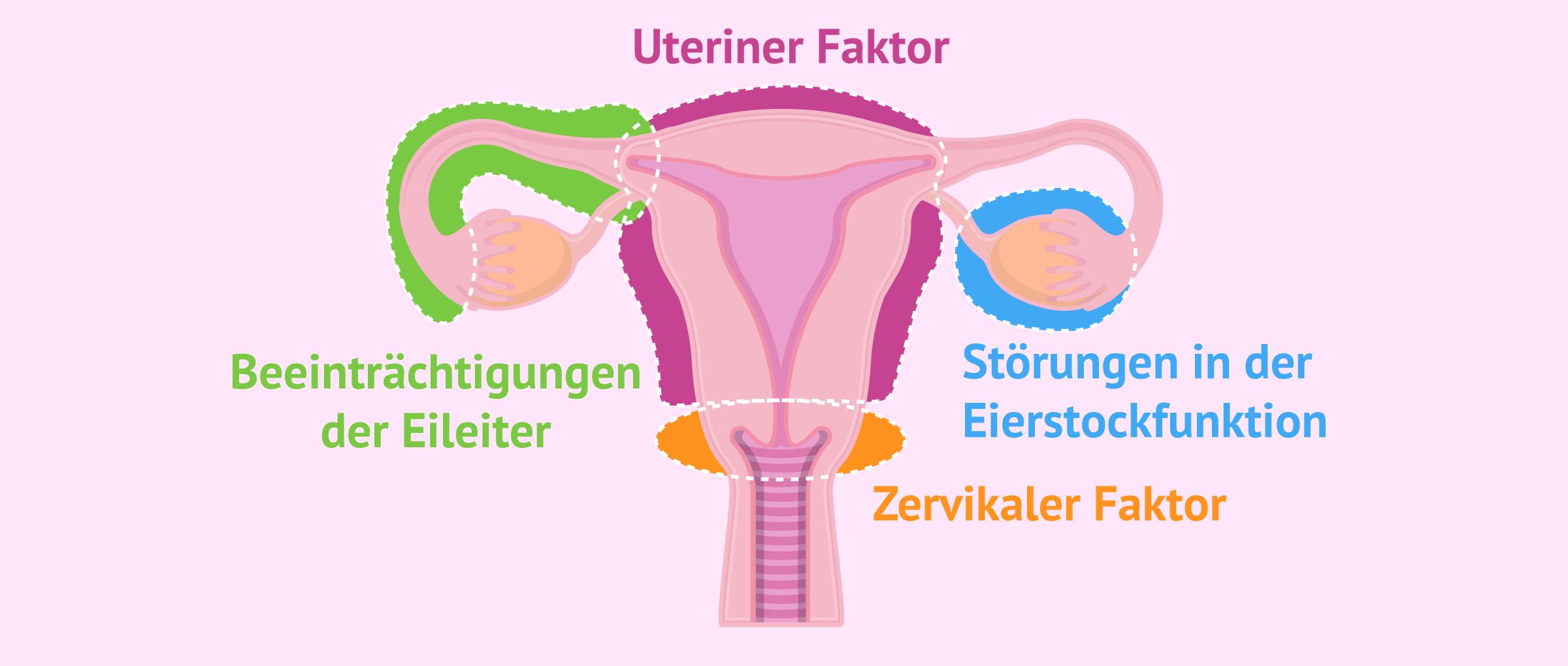 Ursachen weiblicher Sterilität
