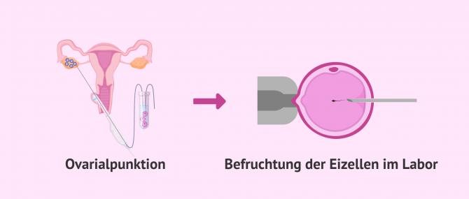 Imagen: Punktion und Befruchtung