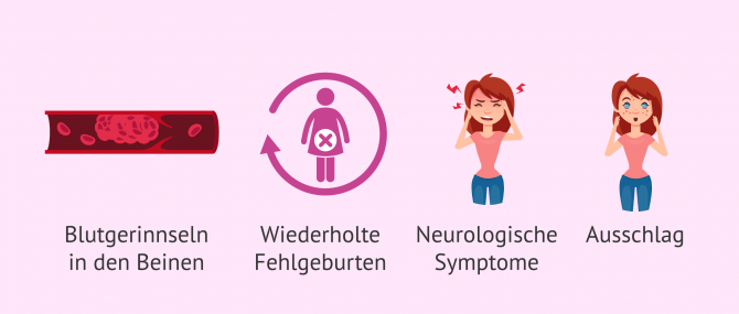 Imagen: Antiphospholipid-Syndrom: Symptome