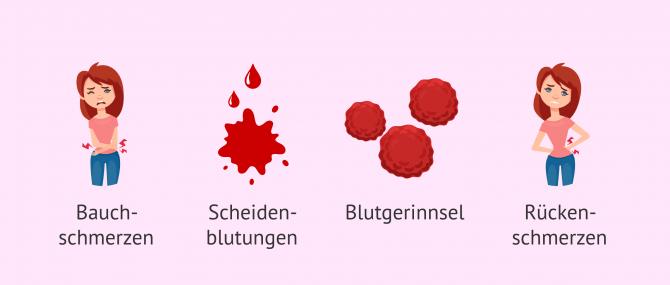 Imagen: Klinische Erscheinungsformen bei biochemischer Schwangerschaft