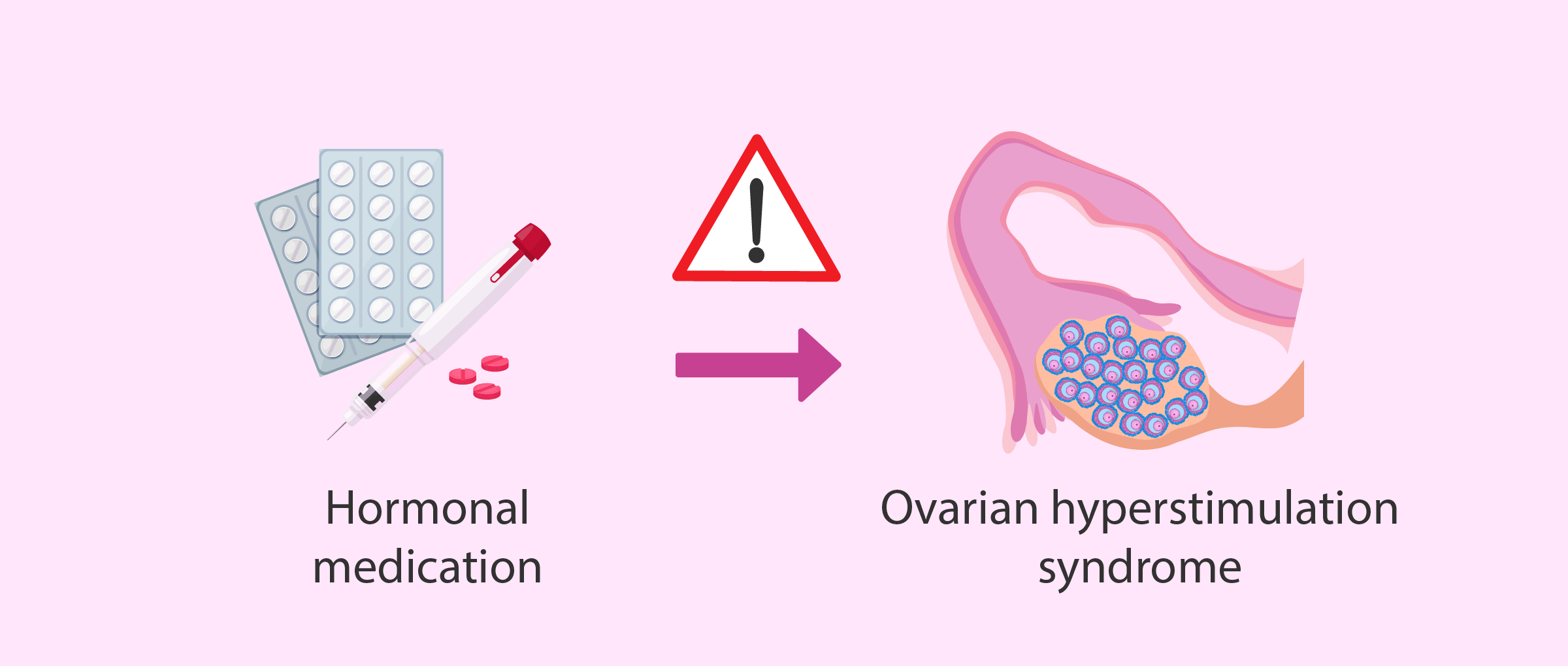 Ovarian hyperstimulation syndrome (OHSS)