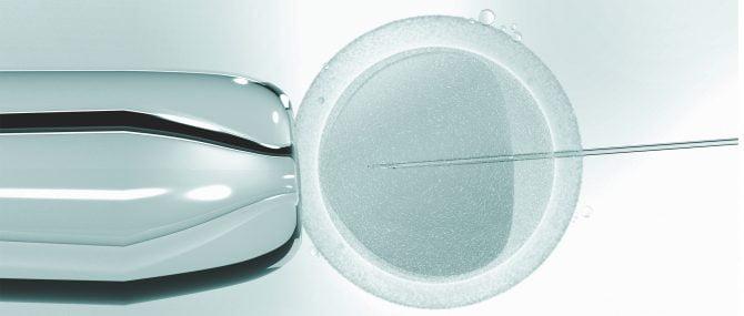 Imagen: IVF or ICSI