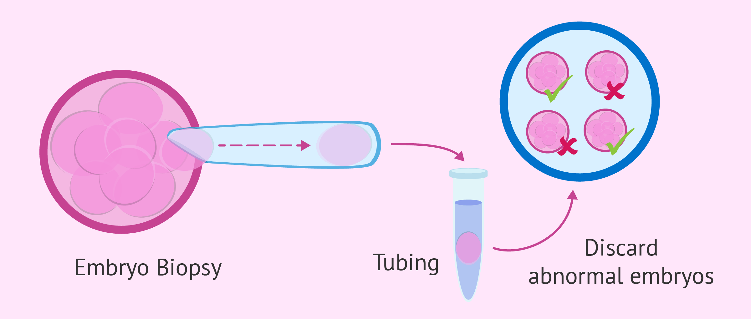 What is the Preimplantation Genetic Diagnosis (PGD)?