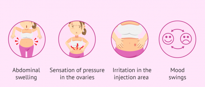 Imagen: ovarian stimulation symptoms